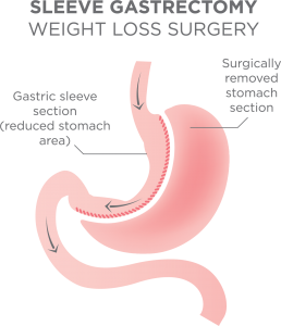 gastric sleeve surgery procedure
