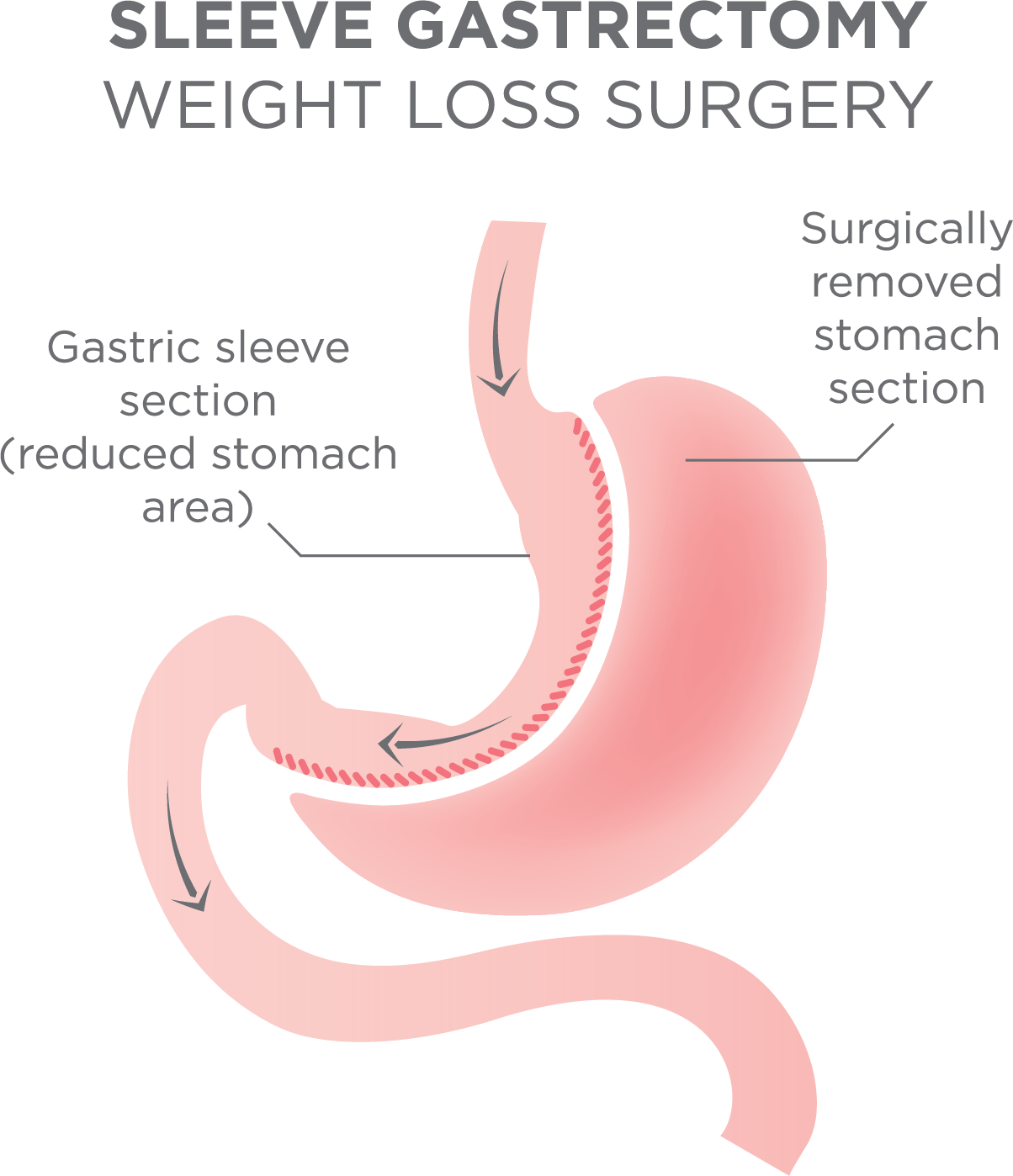 Dating sites for people who have had bariatric surgery